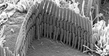 B0000111 Hair cell of inner ear