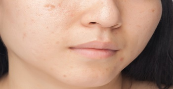 Acne spots and skin problem