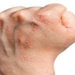 アトピー性皮膚炎はなぜ起こる?アトピー性皮膚炎の原因を知りましょう。